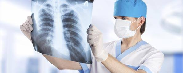 medical doctor looking at lung x-ray